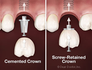 cemented-vs-screw-retained-crowns