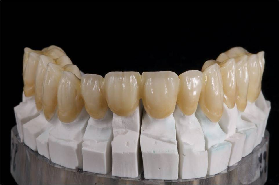 Staining Zirconia And Its Impact On Strength Opt In